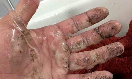 Τα καμένα χέρια του ανώνυμου πυροσβέστη ήρωα!