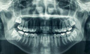 «Ακτινολογία και Ακτινοδιάγνωση»:  Ημερίδα από τον Οδοντιατρικό Σύλλογο Μεσσηνίας