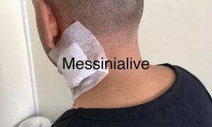 Τι δηλώνει στο Messinialive το θύμα της επίθεσης με το κουζινομάχαιρο