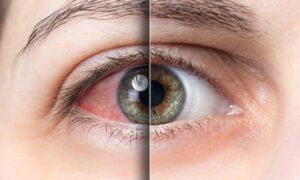 Ξηροφθαλμία: Βασικές αρχές διάγνωσης και αντιμετώπισης