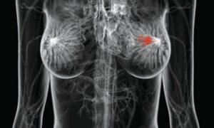 «Ξαναρχί-ΖΩ»: Ενημέρωση για τον καρκίνο του μαστού την Τετάρτη στην πλατεία Καλαμάτας